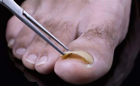 Obat Jamur Kuku 9 bahan alami untuk mengobati jamur kuku