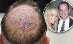 Michael Lohan gets hair transplant ahead of Lindsay's ... Flood Relief Donations