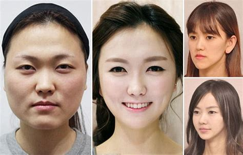 the world capital of plastic surgery the new yorker womenstyles south korea now the plastic surgery capital