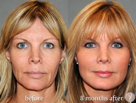 women face lift 312 best images about beauty makeup on pinterest