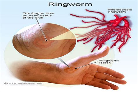 can you get ringworm from a 14 effective home remedies that will help you get rid of ringworm health and wellness