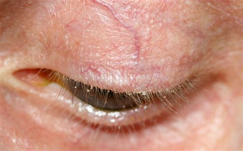 blepharitis images blepharitis symptoms causes diagnosis and treatment