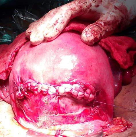 myomectomy during cesarean section journal of postgraduate gynecology obstetrics a