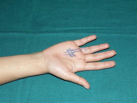tetik parmak neden olur