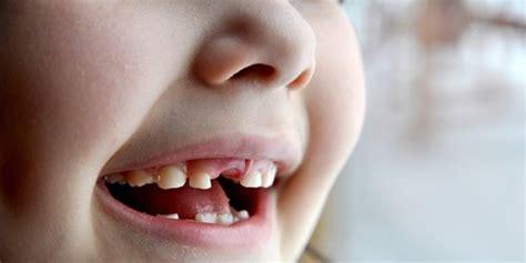 Untuk Pemutihan Gigi 5 cara untuk cegah sekaligus sembuhkan gigi berlubang merdeka