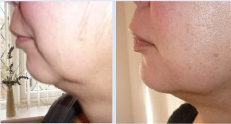 Mba Clinic Maidenhead by Skin Tightening Non Surgical Skin Tightening Treatments