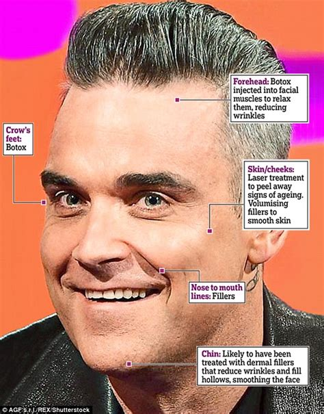 best of robbie williams robbie williams discusses cosmetic treatments he uses to