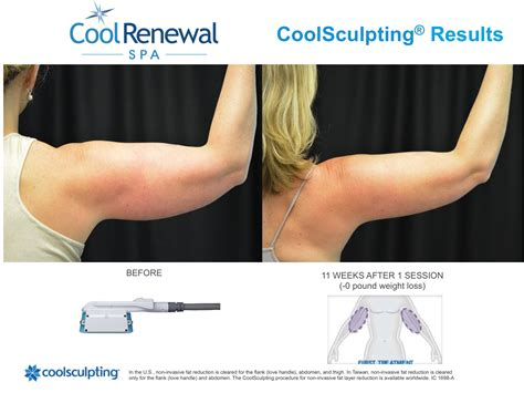 coolsculpting arms before and after pictures before after cool renewal spa