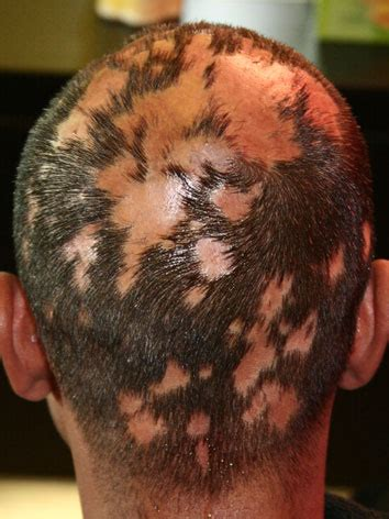 Hair Tonic Green Obat Botak Koin Obat Rambut Botak Koin Alami Hair Tonic Penumbuh Rambut