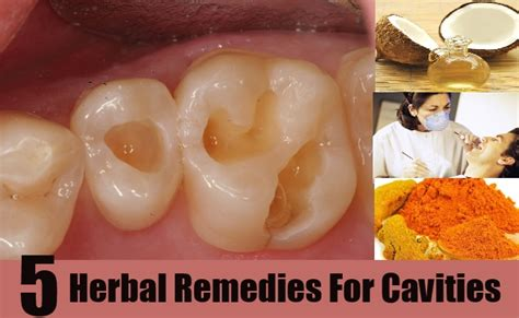 home remedies to stop cavity