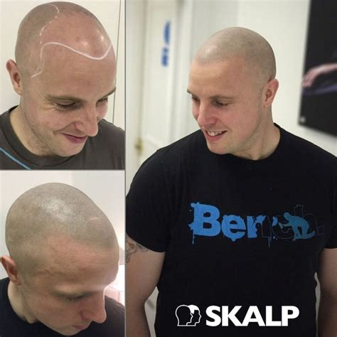 male pattern baldness tattoo treatment for male or female pattern baldness alopecia