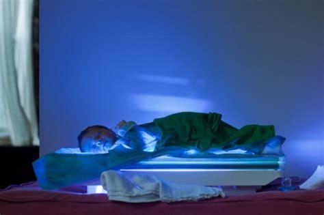 bilirubina alta e alimentazione birilubina alta nel neonato cause sintomi e cure