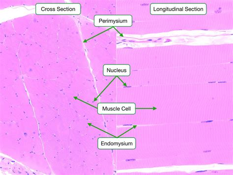 skeletal muscle longitudinal section muscle reading php lab