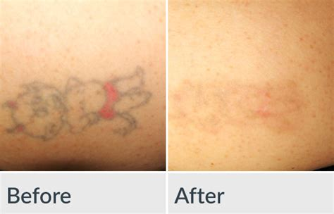 saltwater tattoo removal 100 removal prasad cosmetic surgery dimple