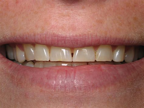 dr kerbs    smiles escondido dentist dr