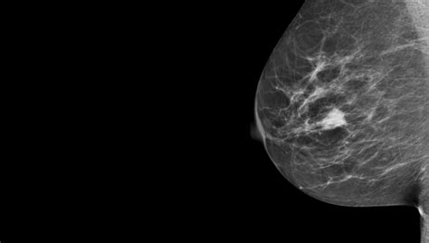 mammogram images breast microbiome profiles linked to higher or lower