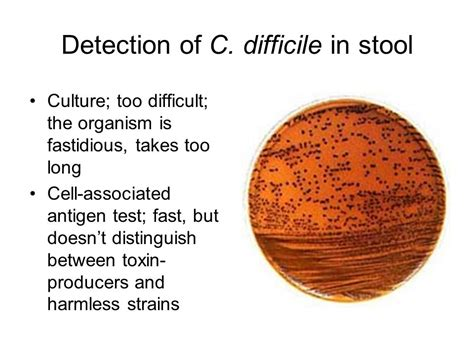 Cdiff Stool by Clostridium Management In Term Care Ppt