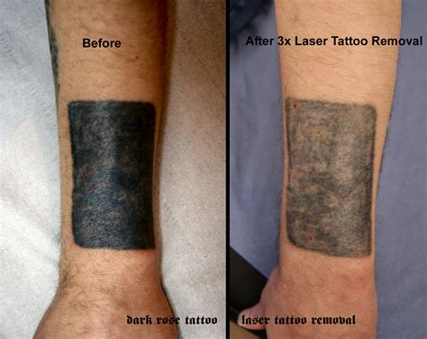 tattoo removal black skin before after and pmu removal with laser