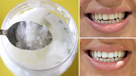 say goodbye to bad breath tartar and plaque using this
