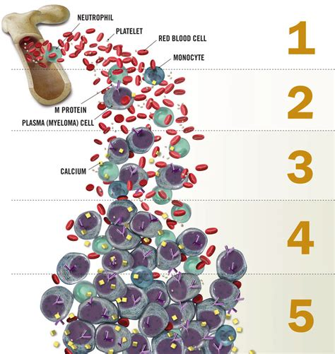 m protein in blood illustration myeloma