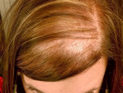 guide to hair loss conditions diagnose yourself lupus hair loss gallery