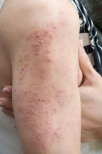 what is dermatitis herpetiformis allergic living