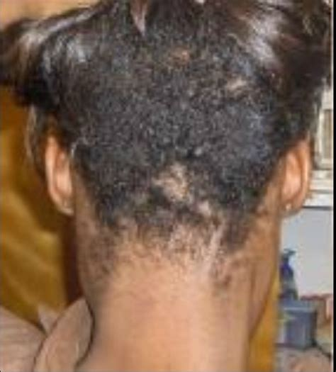 Hair Thinning Nape Area Black Women | cut nape with long hairs for black women short hairstyle
