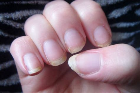 brittle nails point to thyroid problem the peoples pharmacy natural home remedies to cure the splitting brittle finger