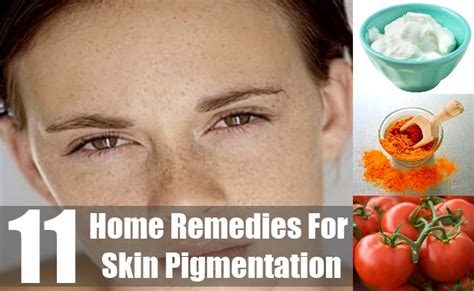11 home remedies for skin pigmentation