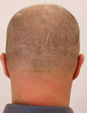bad hair transplants when hair transplants go wrong