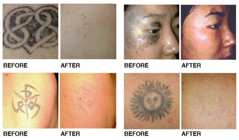 tattoo cream before 61 best tattoo removal before and after pictures images on