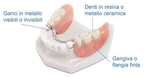 tipi di protesi dentarie mobili protesi scheletrata o scheletrato denti360