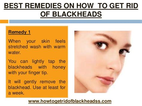 how to get best remedies on how to get rid of blackheads
