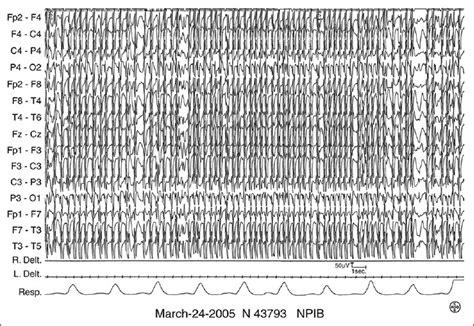 eeg pattern in math neuropsychological impairment in early onset hydrocephalus