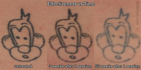 tattoo removal stages results fade fast