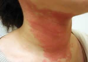 skin fungus doctorndtv health information on fungal infections of the skin