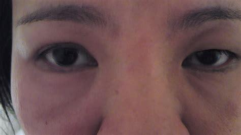 eye swollen swollen