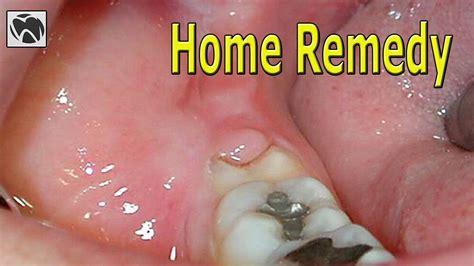 pericoronitis home remedy best pericoronitis treatment