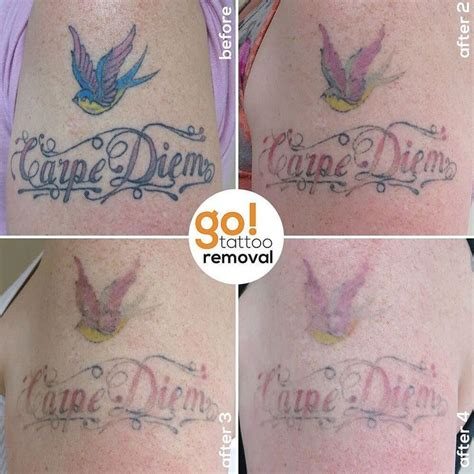 process of tattoo removal 17 best images about removal in progress on