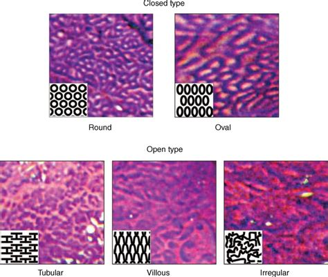 xsd pattern types representative endoscopic images with schema of pit pattern