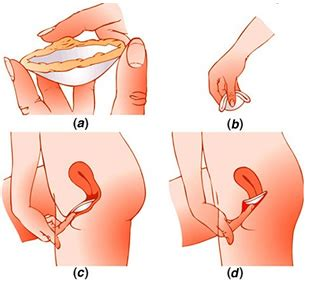come si mettono gli assorbenti interni diaframma contraccettivo