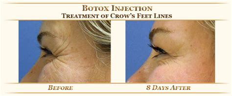 how long does botox last doctor answers tips realself botox injection in dubai best botox deals