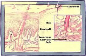 Can Using A Hair Dryer Cause Dandruff recipes for dandruff hair remedies at home hair remedies at home