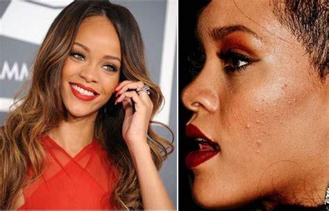 make celeb fakes rihanna celebs with acne zits pimples celebrity skin