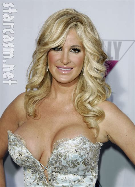hair of housewives why does kim zolciak wear a wig she blames anemia