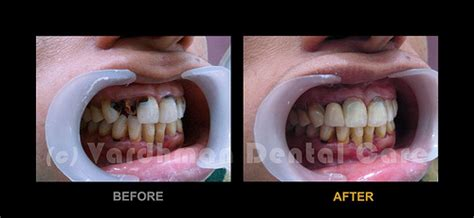front teeth repair of ms s r vdc flickr photo