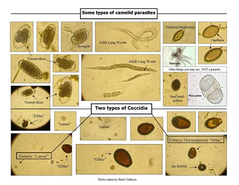 are you being poisoned by parasites
