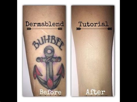 tattoo cover up keratosis pilaris dermablend covering up scars on leg doovi