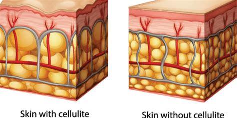 alimentazione cellulite rimedi cellulite 3 step e i nuovi prodotti roba da donne