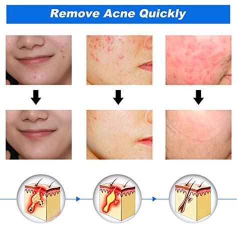 acne patch cystic acne treatment acne treatment acne treatment acne eliminating